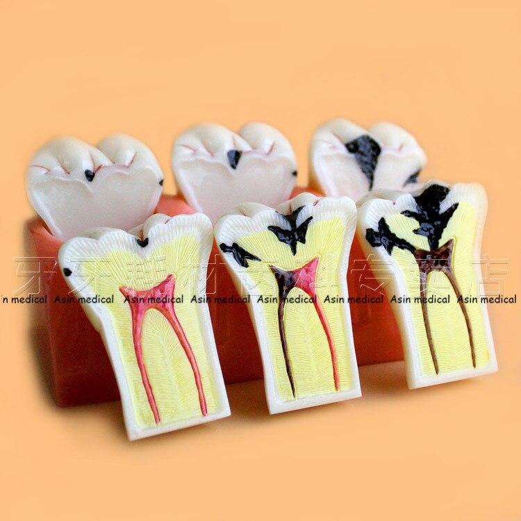 Nouveauté Caries bijoux modèle de décomposition de l'enseignement modèle d'évolution modèle d'étude de l'enseignement dentaire