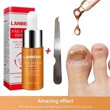Восстанавливающая эссенция для ногтей, сыворотка для лечения грибковых ногтей, удаление онихомикоза, Питательный Уход за ногтями