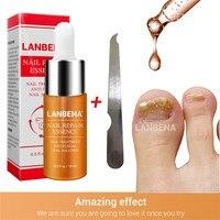 nail repair essence Serum fungal nail treatment remove onychomycosis nail nail nourishing Brighten Care of hands Nail Treatments