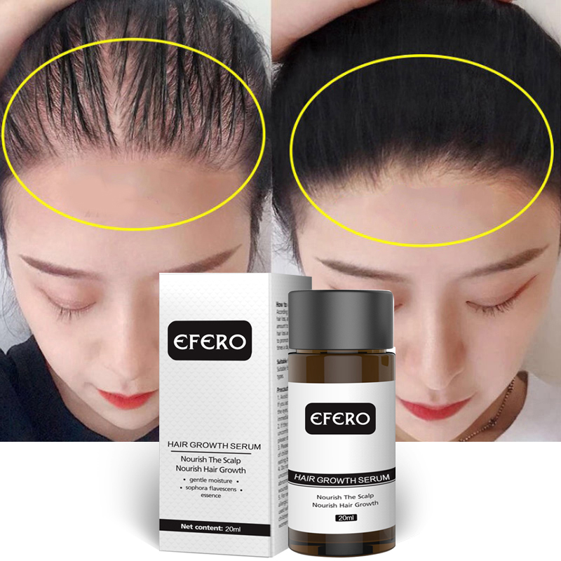 efero Powerful Hair Growth Serum Prevent Hair Loss Essential Oil Longer Thicker Prevent Baldness Products Professional Hair Grow-in Hair Loss Products from Beauty & Health