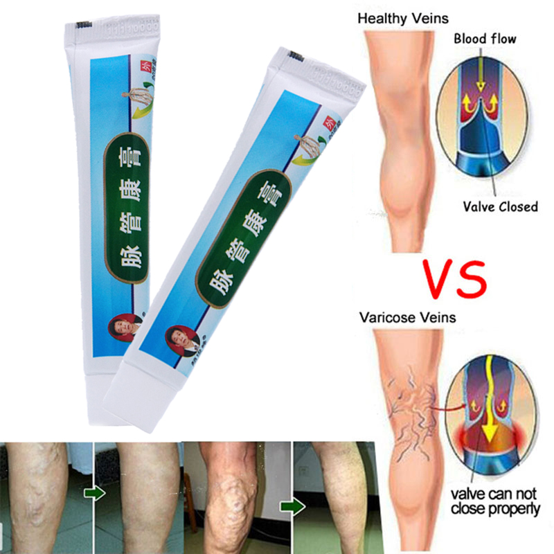 No Box ! Chinese Natural Herbal Medicine For Treating Varicose Vascular Inflammation Massage Cream Cure Varicose Vein Ointment