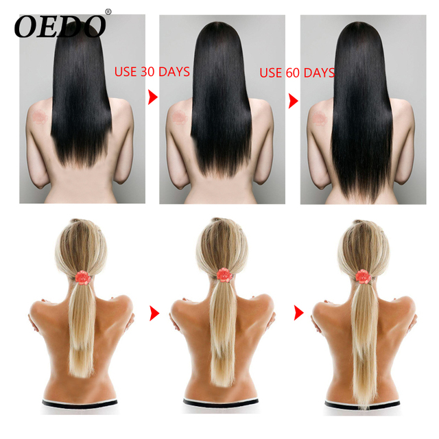 Producto de Importación Esencia OEDO 30 ml crecimiento rápido suero reparación puntas abiertas tratamiento de Ginseng de hierbas pérdida de cabello hidratante