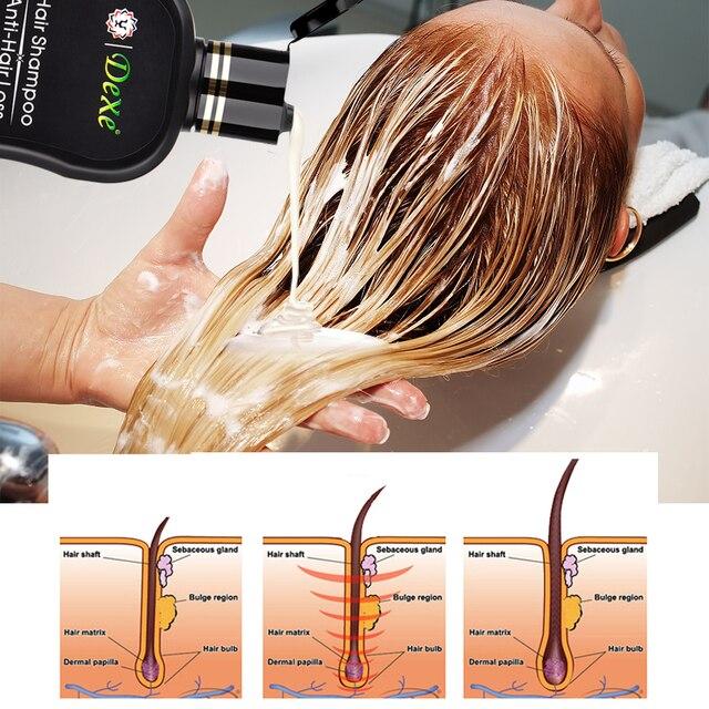 مكافحة فقدان الشعر الشامبو المهنية الصينية العشبية النمو علاج الشعر الشعر منع سميكة منتجات العناية بالشعر للكبار 200 مللي 4
