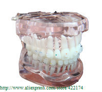 Free Shipping Orthodontics model with cemeric bracket dental tooth teeth dentist dentistry  odontologia Tyodont Model