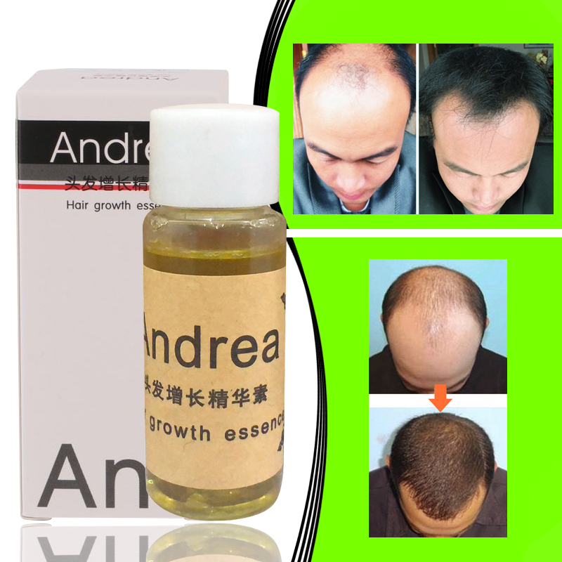 1PCS Andrea Hair Growth essence Anti Hair Loss Product Shampoo 30ml Natural Hair regrowth Fast,Thicker,andrea hair growth oil image