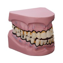 New Dental Implant Disease Teeth Model Smoking Decay Caries Tooth Model Denture For Dentist Medical Science Teaching Study