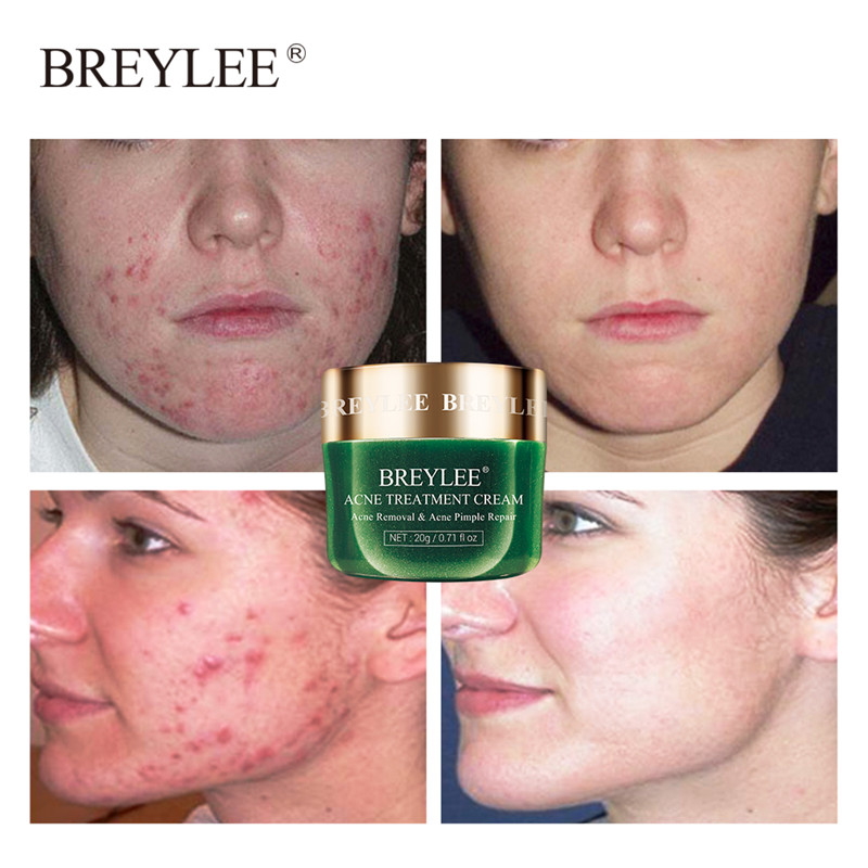 BREYLEE Acne Treatment Cream Face Anti Acne Scar Removal Cream Skin Care Whitening Repair Pimple Remover For Acne !