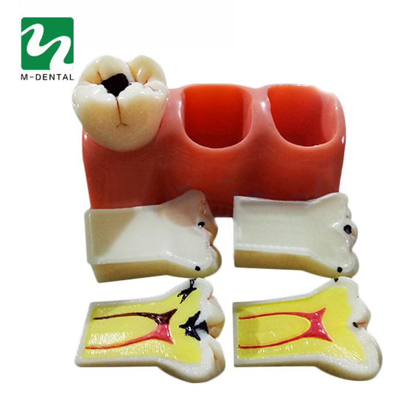 1 pc Dental Materials Lab 4 Times Caries Disassembling Model Denture Disease Teeth Model For Dentist Clinic dentist gift resin crafts toys dental artware teeth handicraft dental clinic decoration furnishing articles creative sculpture