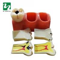 1 unid Materiales Dentales de Laboratorio 4 Veces Caries Desmontaje Modelo Dentadura Dientes Para El Dentista Clínica de Enfermedades