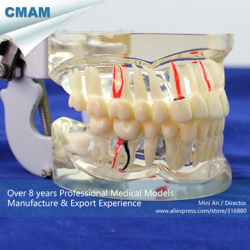 CMAM-DENTAL07 Transparent Adult Pathological Teeth Model for Dental Study and Communication 1 pcs dental standard teeth model teach study