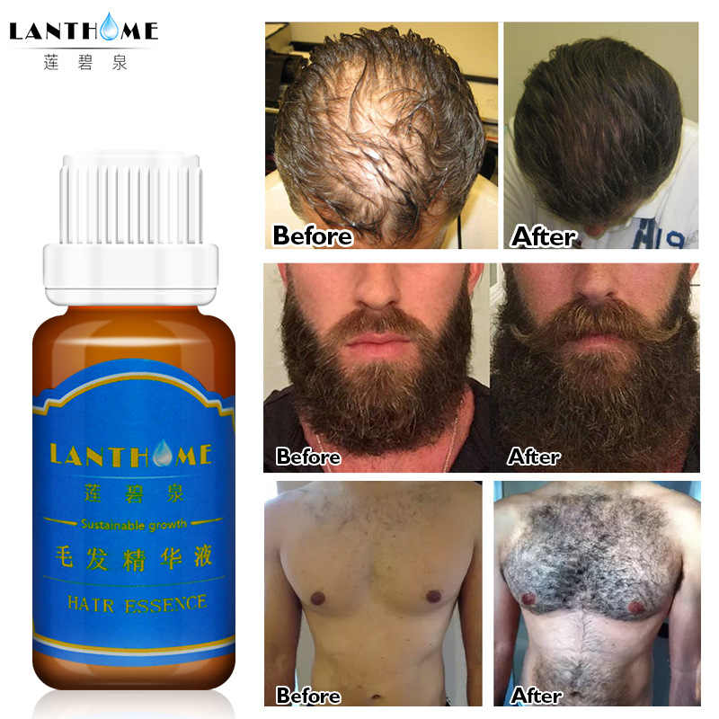 20ml Men Beard Growth Oil Hair Eyelash Eyebrow Growth Enhancer Chest Thicker Essence Hair Loss Treatment Conditioners TSLM2