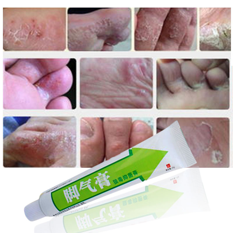 Foot-Cream Feet-Care Good-Ointment Peeling-Feet Beriberi Itchy Athlete's For Erosive