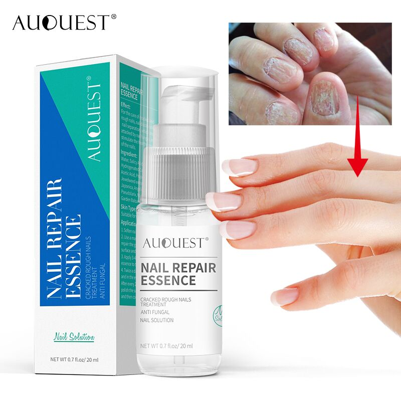 AuQuest Nail Repair Essence Cracked Rough Nails Treatment Anti Fungal Nail Solution Foot Scrub Finger Toe Nail Polish Foot Care rough guide polish phrasebook