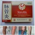 12 pcs/2 box Curar Varizes Tratamento À Base de Plantas Remendo Vasculite Solução Natural Chinês Mai Guan Yan Porões Ácido coceira
