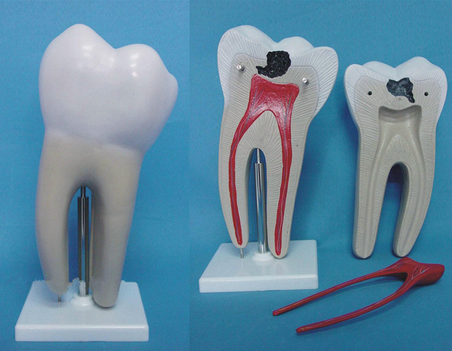 Advanced Large Human Tooth Decay Model 3 Times Inside The Human Body