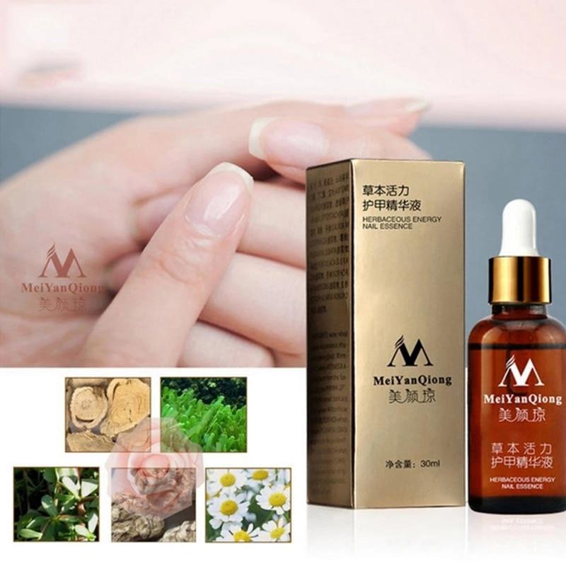MeiYanQiong Fungal Nail Treatment Foot Care Essence WhiteningToe Fungus Remove Gel Anti Infection Paronychia Onychomycosis TSLM2|Nail Treatments|   - AliExpress
