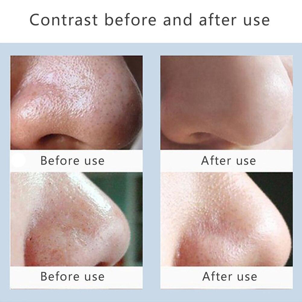 limpo acne beleza cuidados com a pele ferramentas máquina