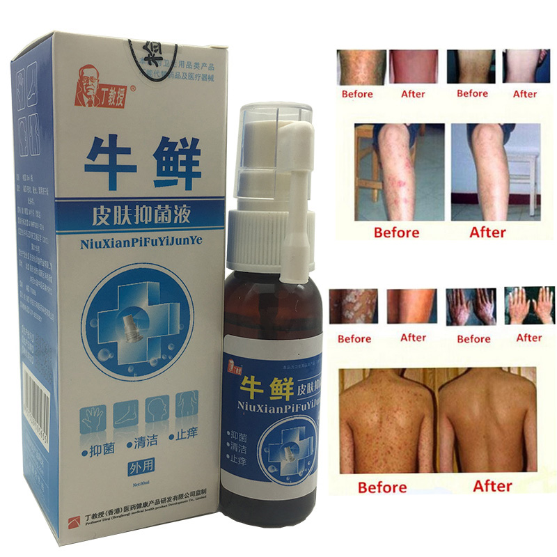 Psoriasi Eczma Cream Works Well For Skin Problems 2pcs psoriasi eczma cream works perfect for all kinds of skin problems patch