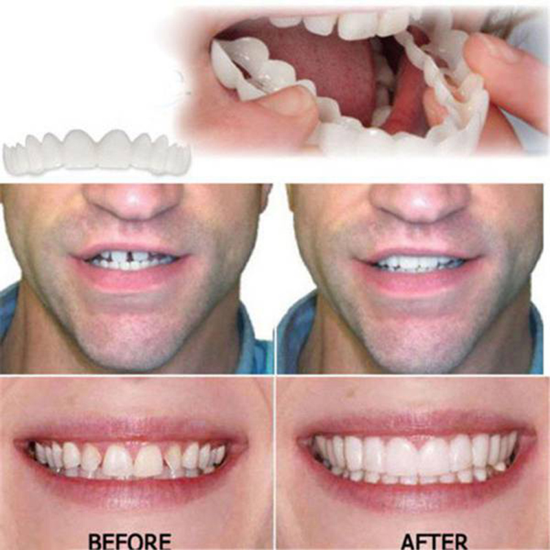 Drop Ship Smile Maker Fit Flex Teeth with Box Fits Snap on Smile False Teeth Upper Fake Tooth Cover Perfect Smile Veneers 3