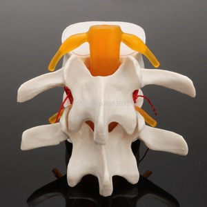 Image 4 - ทันตกรรม 1:1 Human Anatomy SkeletonกระดูกสันหลังLumbar Disc Herniationการสอนรุ่น
