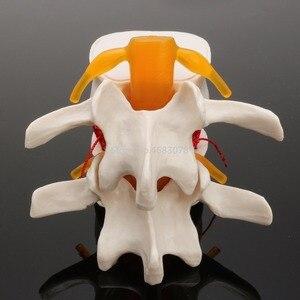 Image 4 - Dental 1:1 Menschlichen anatomie skelett Wirbelsäule Bandscheibenvorfall Lehre Modell