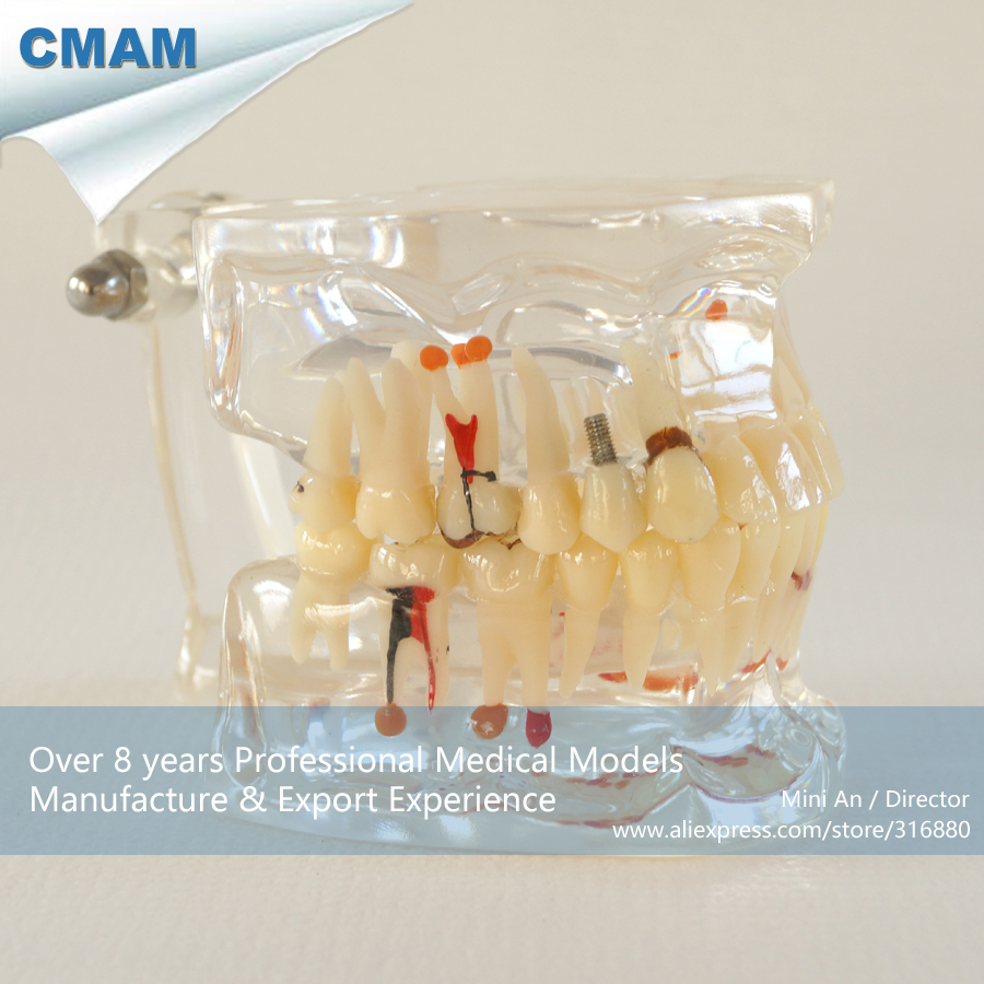 ФОТО CMAM-DH301 Adult Jaw Pathology Model with Half Implant for Patient Education