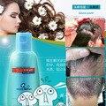 Medicina losshair receta anti-caída del cabello tratamiento del cuero cabelludo del pelo champú cuidado del cabello profesional queratina para tratamientos de pérdida de cabello del cuero cabelludo