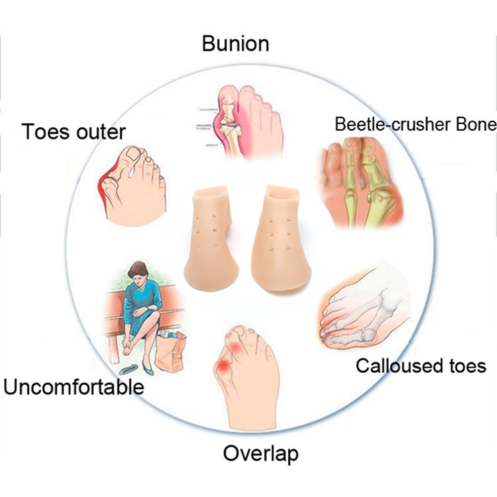 2pcs Thumb Valgus Protector Silicone Gel Foot Fingers Two Hole Toe Hallux Correction 1pair Separator Protect Bunion Improve Strength Relief Materialsilicone 01 02 03 04 05 06