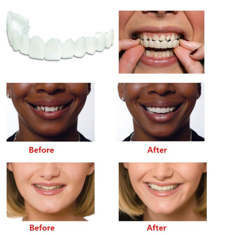 Teeth Cosmetic Instant Smile Comfort Fit Flex Cosmetic Teeth Denture Teeth Top Veneer Massage Relaxation 3
