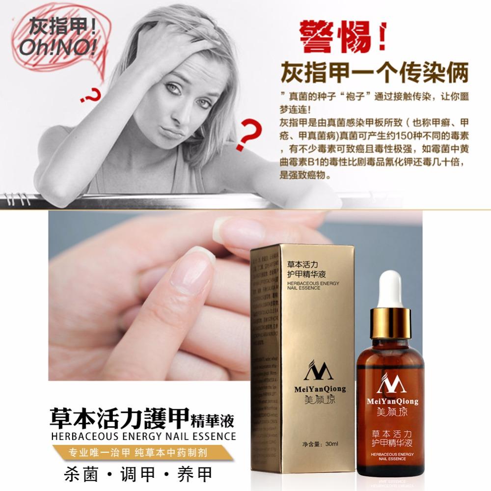 Original Fungal Nail Treatment Essence Nail and Foot Whitening Toe Nail Fungus 3