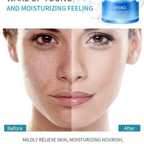 EFERO Face Whitening Cream Hyaluronic Acid for Face Cream Serum Anti-Aging Winkles Cream Moisturizer Skin Care TSLM2 Multan