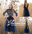 2015 Hot Formal Short Cocktail Dress Party Dress Long Sleeve Prom Dress with Open Back and Lace Appliques Vestido de Festa