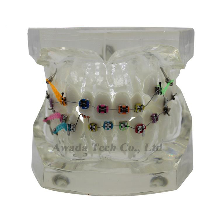 Dentistry Orthodontic model Dental model Bracket display model,Dentist for Medical Science Teaching Teeth Whitening dental prosthesis teeth model with metal ceramic bracket brace dentist model denture teaching study model technician tools