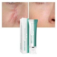 цены на BREYLEE Acne Scar Removal Cream 30g Face Cream Skin Repair Skin Care Scar Acne Treatment Remove Stretch Marks Whitening Cream !  в интернет-магазинах