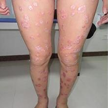 Psoriasis Treatment Cream Dermatitis Eczematoid