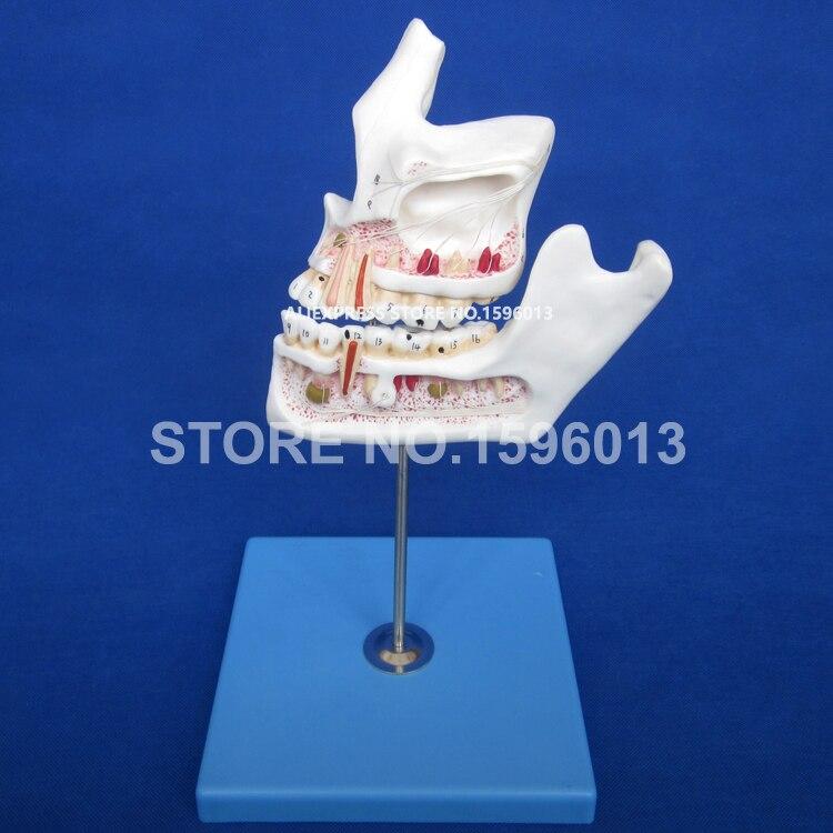 Патологический зуб с моделью челюсти, модель болезни зубов, кариес зубов, разложенные зубы и модель зуба с пульпитом