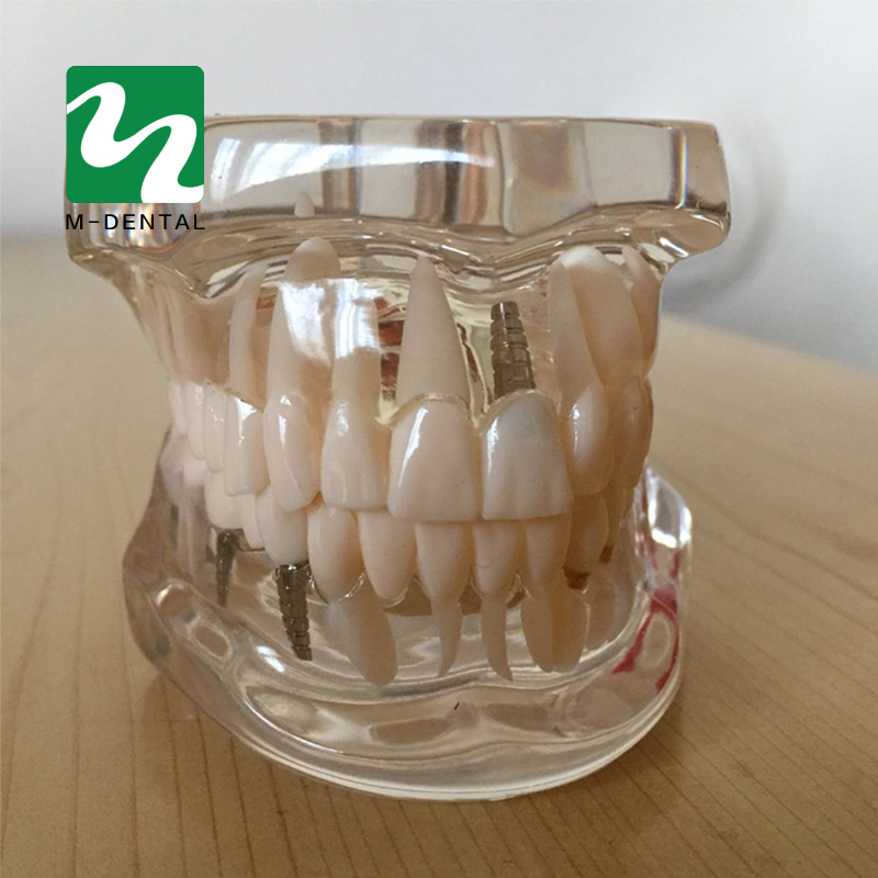 Dental Study Tooth Transparent Adult Patological Teeth Model Fit for Adult Teaching Study