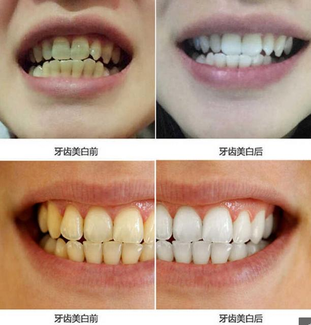 10ml Teeth Whitening Water Oral Hygiene Cleaning Teeth Care Tooth Cleaning Whitening Water Clareamento Dental Odontologia 3