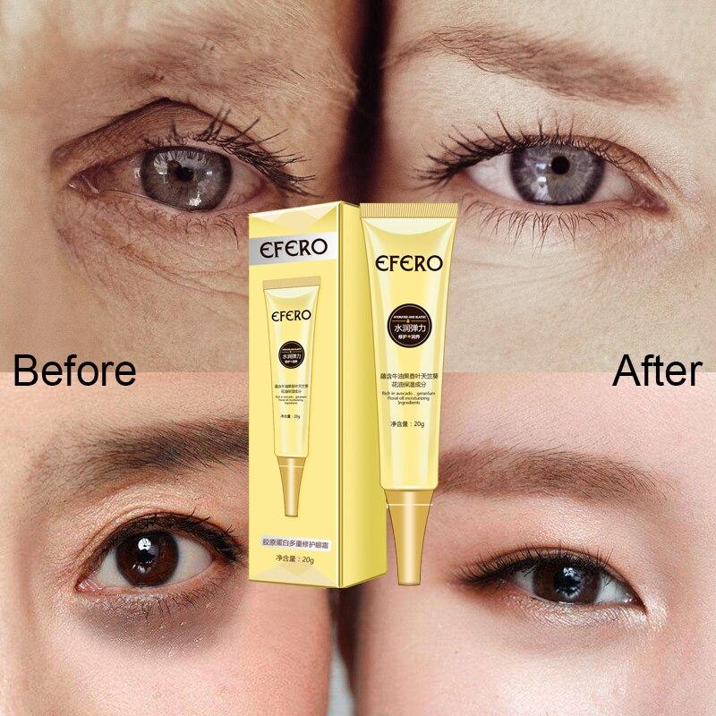6PCS EFERO Skin Care Set Kit Eye Cream Moisturizing Dark Circles Remover Eye Patches Anti Aging Anti Puffiness Eyes Serum Care