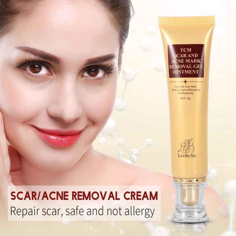 Растяжки для удаления акне шрамов лечение угрей отбеливающий крем уход за кожей лица беременность контроль масла ремонт гель 30 г TSLM2