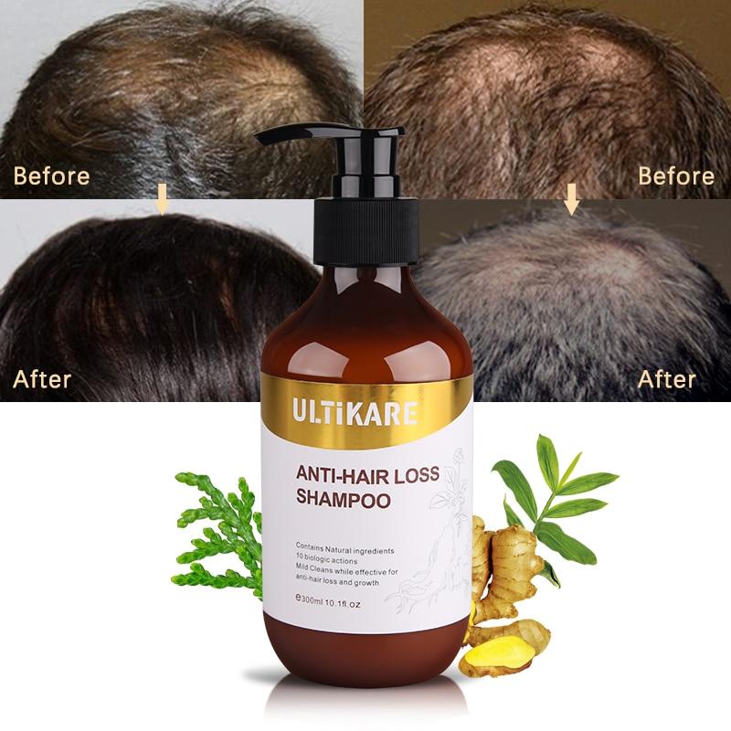 Купить с кэшбэком 300ml Ginger Shampoo Anti Hair Baldness Anti Hair Loss Dandruff Black Hair Shampoo Professional Grow Thick Hair Growth Products