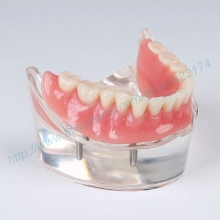Free Shipping restoration model with 4 implants dental teaching study tooth teeth model dentist dentistry odontologia