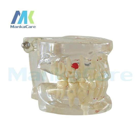 manka cuidar claro misturado idade modelo modelo modelo dente dentes orais 01