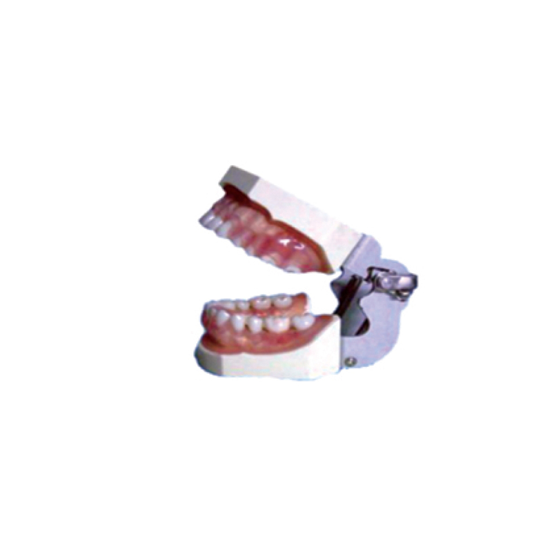 Teaching Model Tooth Disease Pathological Anatomical Model of Teeth Caries Gingival Medical concepts of gingiva and gingival crevicular fluid