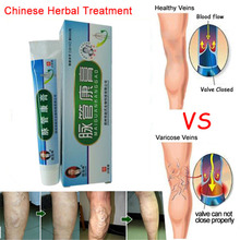 hot deal buy varicose veins ointment chinese traditional herbal medicine angiitis inflammation blood vessel natural treatment cream patch