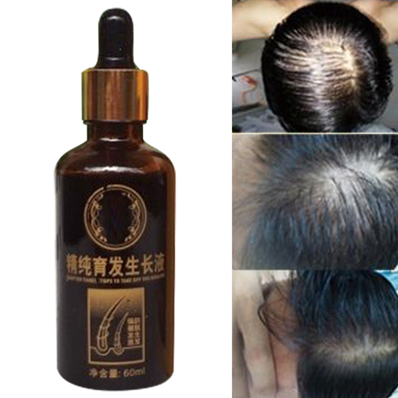 Buy Grow Gorgeous Hair Growth Serum 60ml luxury hair care skincare and cosmetics at HQHaircom with Free Delivery After wearing