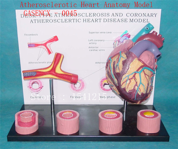 Visceral anatomy model Medical teaching model Atherosclerotic Heart Anatomy Model - GASENCX - 0045 heart anatomy viscera medical model model of cardiac cardiac anatomy cardiovascular model of human heart model gasen rzjp009