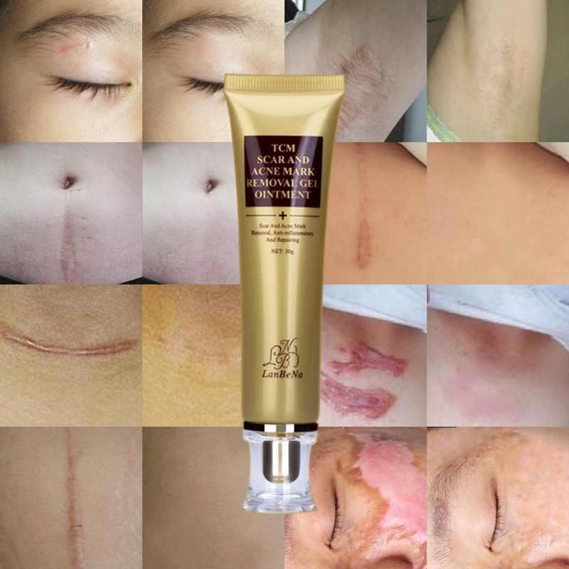 Nouveau visage crème cicatrice enlèvement d'acné Gel crème pour le corps réparation de la peau Pigmentation correcteur visage traitement de l'acné point noir Gel de blanchiment
