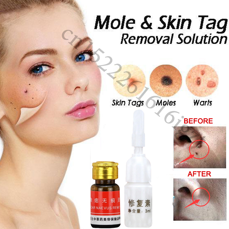 Mole & Skin Tag Removal Solution Painless Mole Skin Dark Spot Removal Face Wart Tag Freckle Removal Cream Oil Plaster|Patches|   - AliExpress