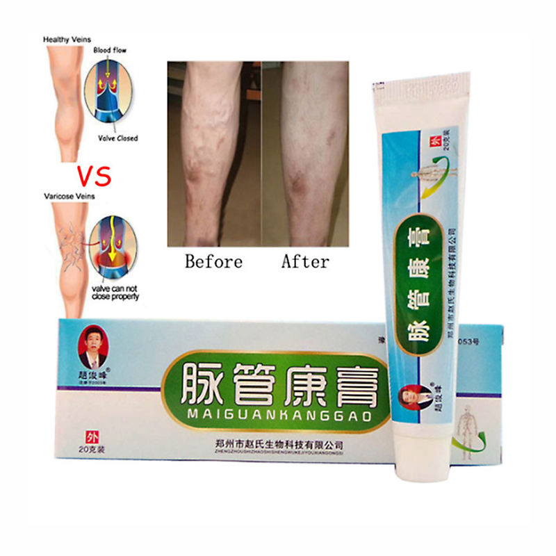 Varicose Veins Ointment Eins Varicose Treatment Plaster Varicose Veins Cure Patch Vasculitis Natural Solution Herbal Patches varicose veins herbal healing patch